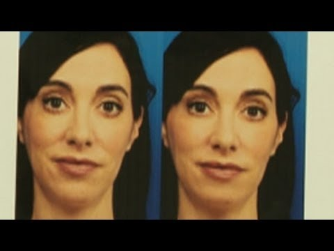 Woman Gets Chin Implant to Look Better Online