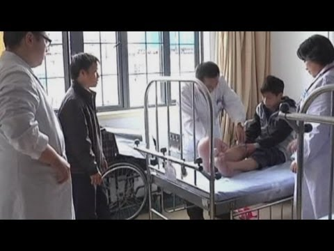 Chinese teenager with severely deformed feet has surgery